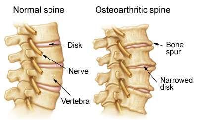 About degen-spine